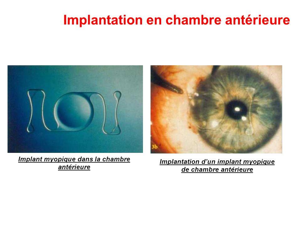 Implantation en chambre antérieure Implant myopique dans la chambre antérieure Implantation d'un implant myopique de chambre antérieure