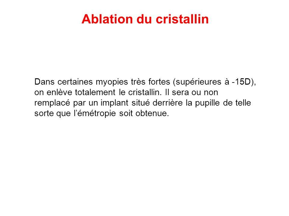 Ablation du cristallin Dans certaines myopies très fortes (supérieures à -15D), on enlève totalement le cristallin. Il sera ou non remplacé par un imp