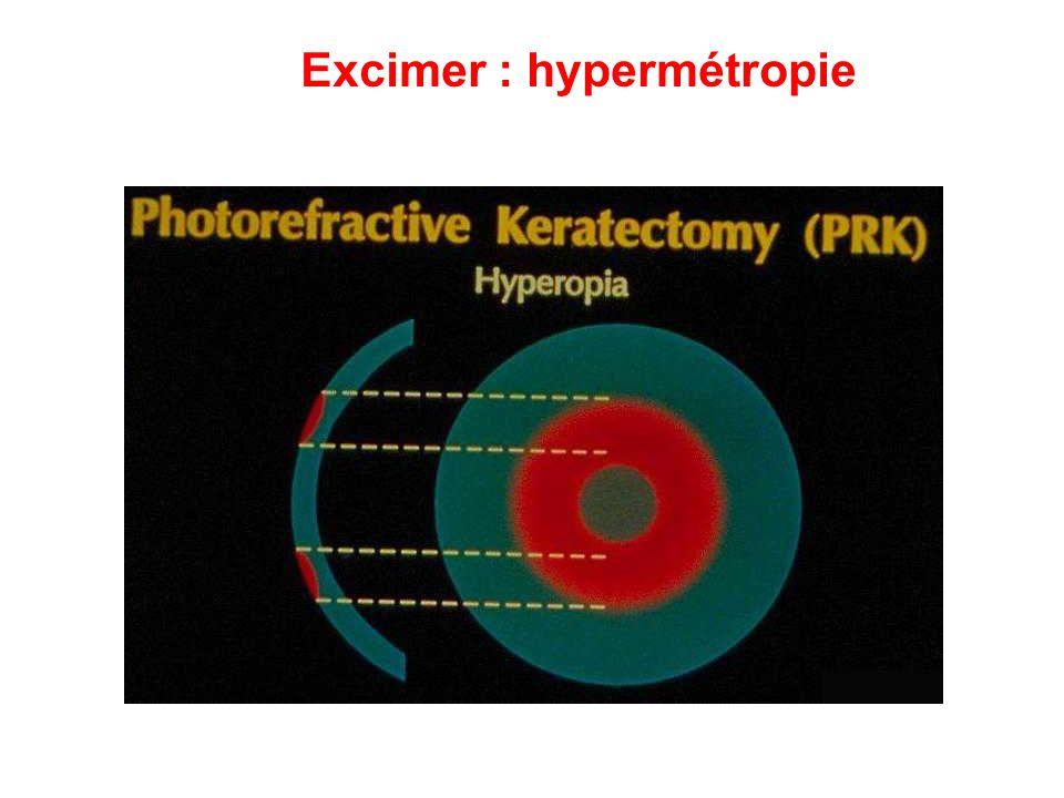 Excimer : hypermétropie