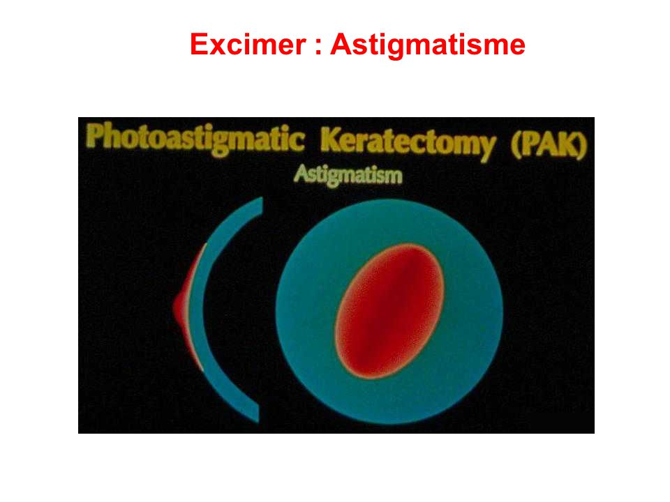 Excimer : Astigmatisme
