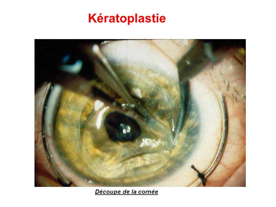 Kératoplastie Découpe de la cornée