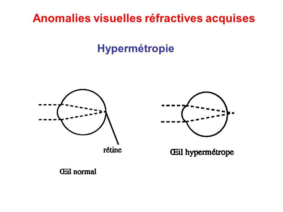 Hypermétropie Anomalies visuelles réfractives acquises
