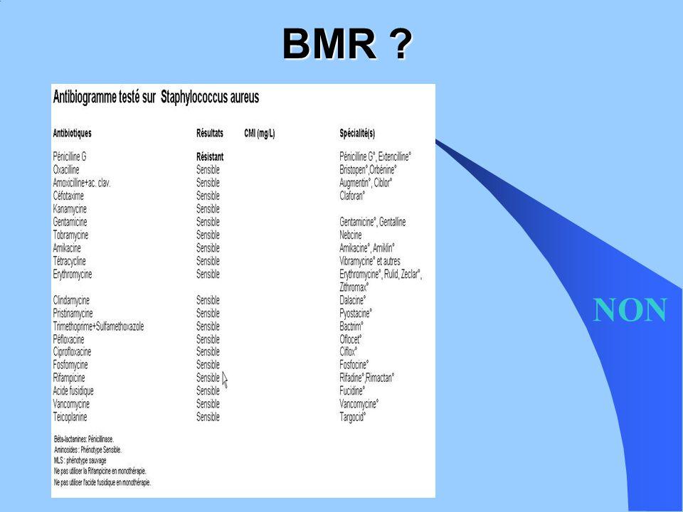 Klebsiella pneumonia Différents mécanisme de carbapenémases EPC : BHRe Klebsiella pneumoniae sauvage