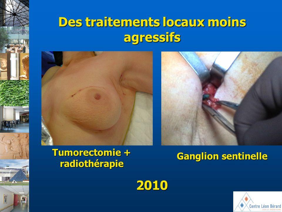 2010 Tumorectomie + radiothérapie Ganglion sentinelle