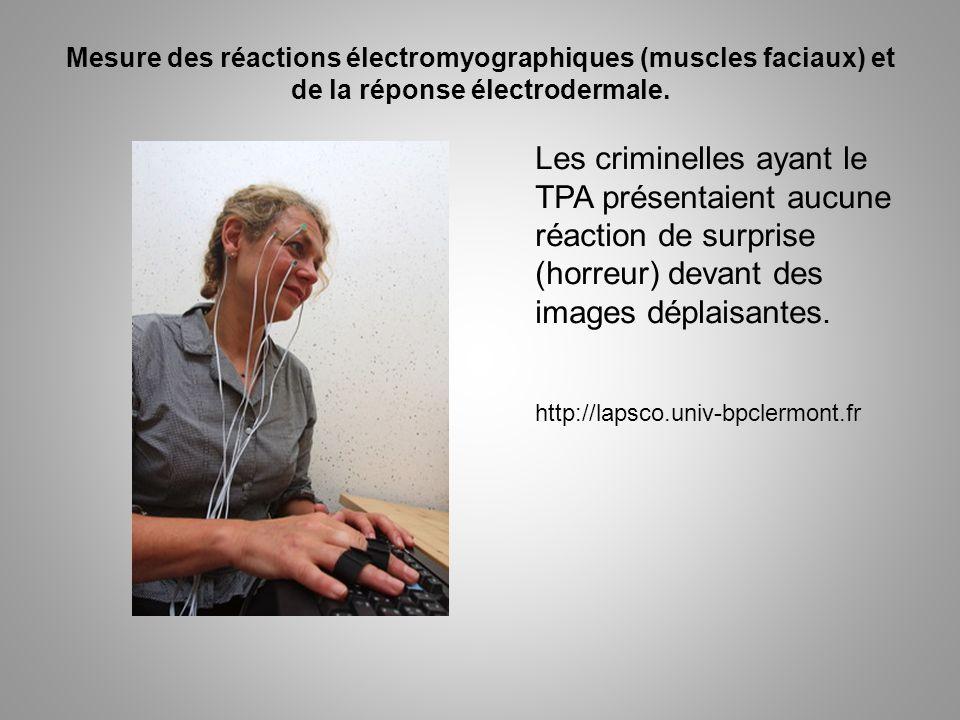 Mesure des réactions électromyographiques (muscles faciaux) et de la réponse électrodermale. Les criminelles ayant le TPA présentaient aucune réaction