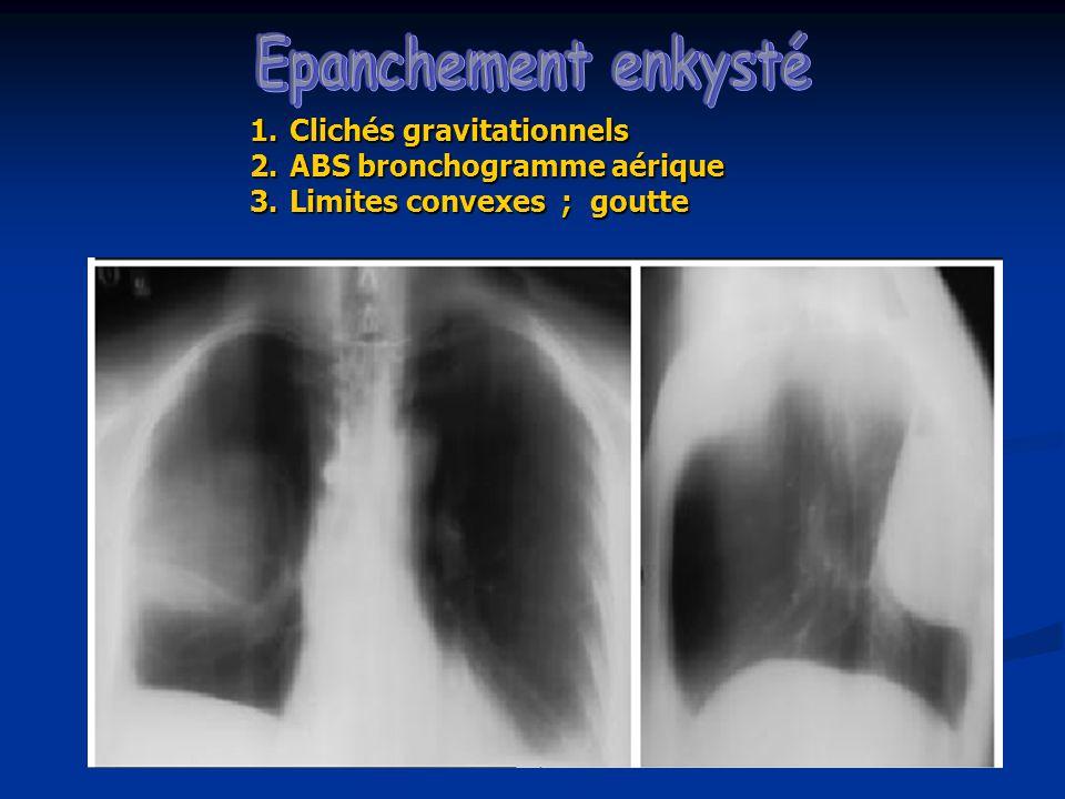 1.Clichés gravitationnels 2.ABS bronchogramme aérique 3.Limites convexes ; goutte