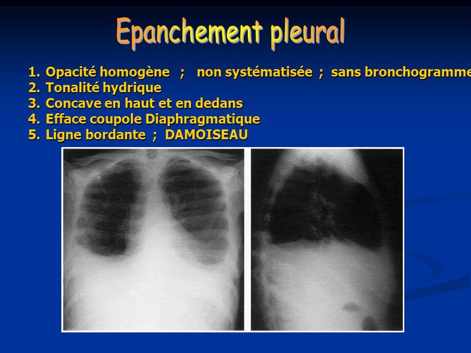 1.Opacité homogène ; non systématisée ; sans bronchogramme 2.Tonalité hydrique 3.Concave en haut et en dedans 4.Efface coupole Diaphragmatique 5.Ligne bordante ; DAMOISEAU