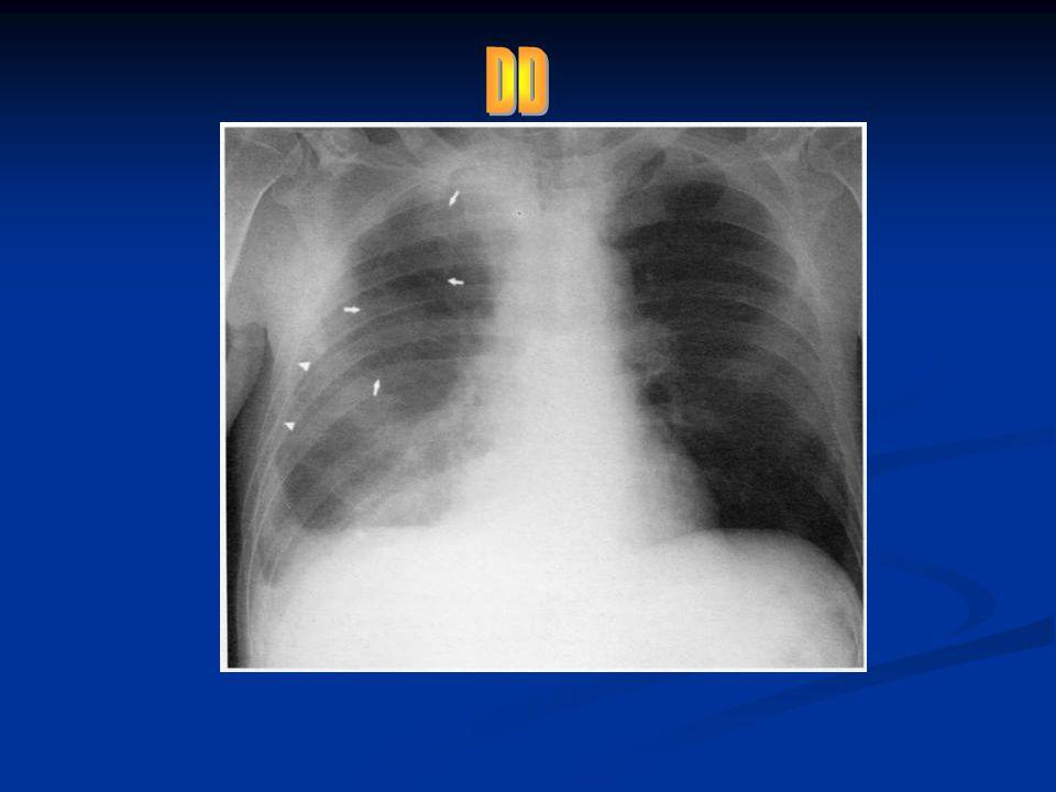 Surélévation coupole diaphragmatiqueSurélévation coupole diaphragmatique PAG séparée poumon 2cm.