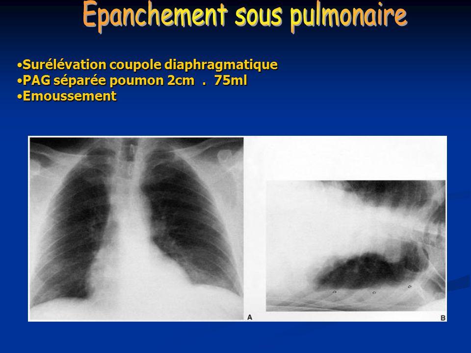 Surélévation coupole diaphragmatiqueSurélévation coupole diaphragmatique PAG séparée poumon 2cm. 75mlPAG séparée poumon 2cm. 75ml EmoussementEmousseme