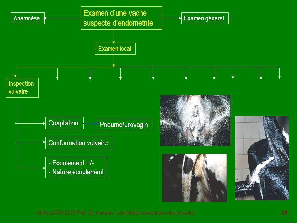 Année 2009-2010 Prof. Ch. Hanzen - Les infections utérines chez la vache 29 Examen d'une vache suspecte d'endométrite Examen général Examen local Insp