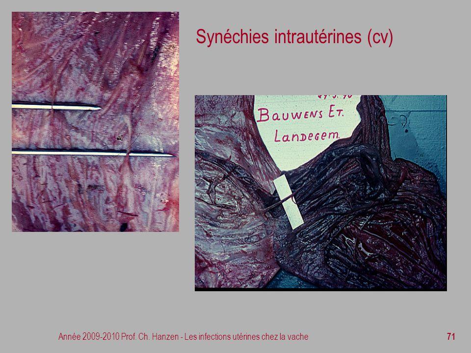Année 2009-2010 Prof. Ch. Hanzen - Les infections utérines chez la vache 71 Synéchies intrautérines (cv)