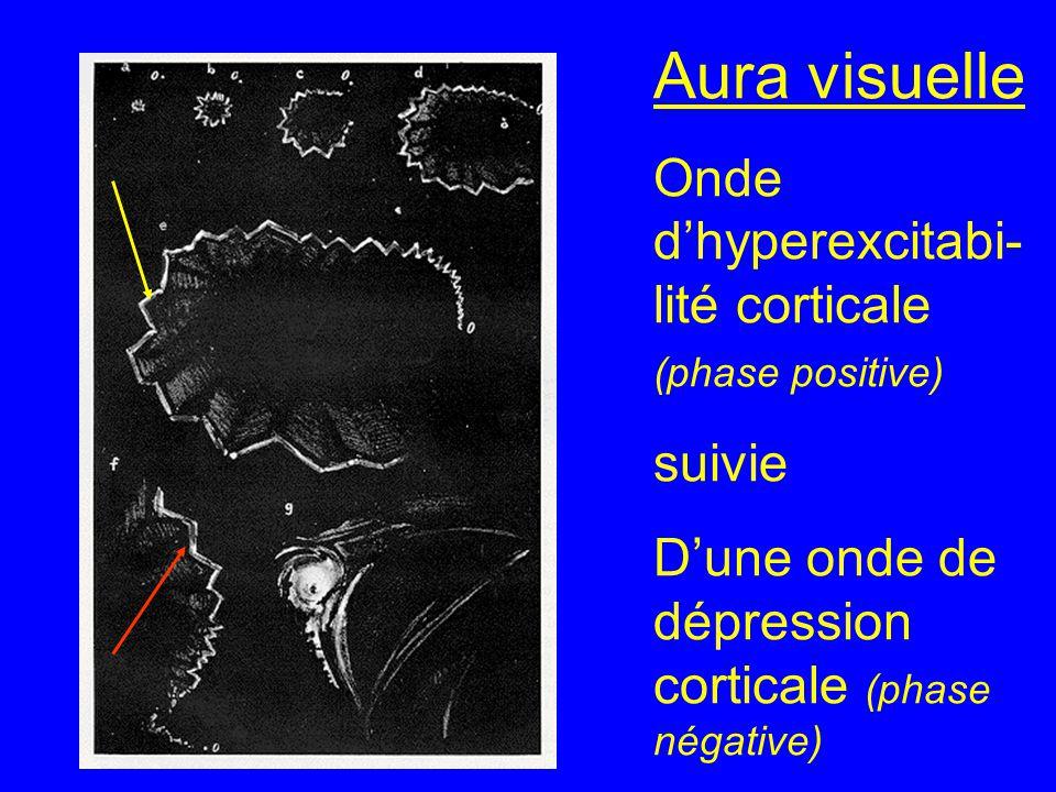 Aura visuelle Onde d'hyperexcitabi- lité corticale (phase positive) suivie D'une onde de dépression corticale (phase négative)