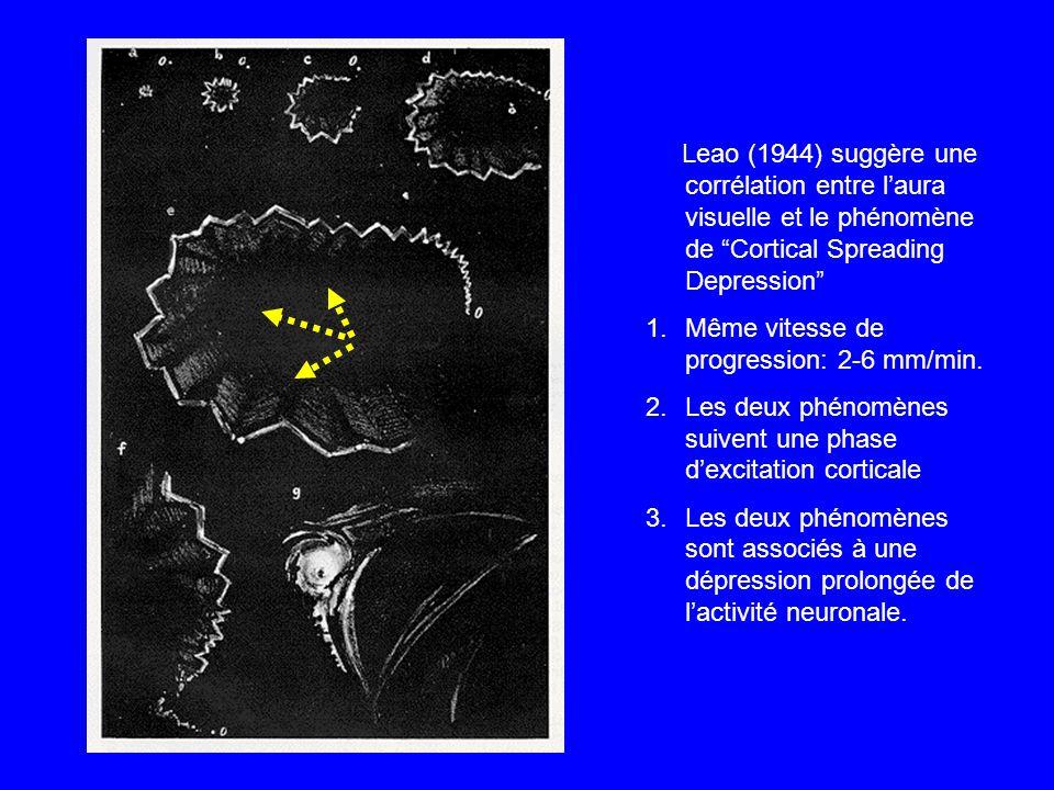 """Leao (1944) suggère une corrélation entre l'aura visuelle et le phénomène de """"Cortical Spreading Depression"""" 1.Même vitesse de progression: 2-6 mm/min"""