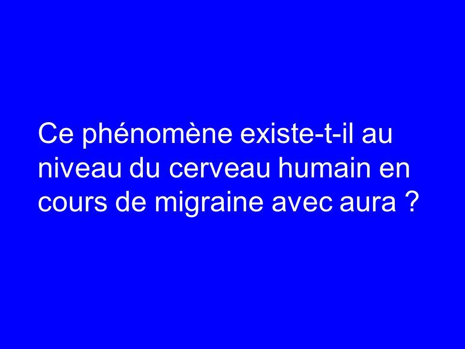 Ce phénomène existe-t-il au niveau du cerveau humain en cours de migraine avec aura ?