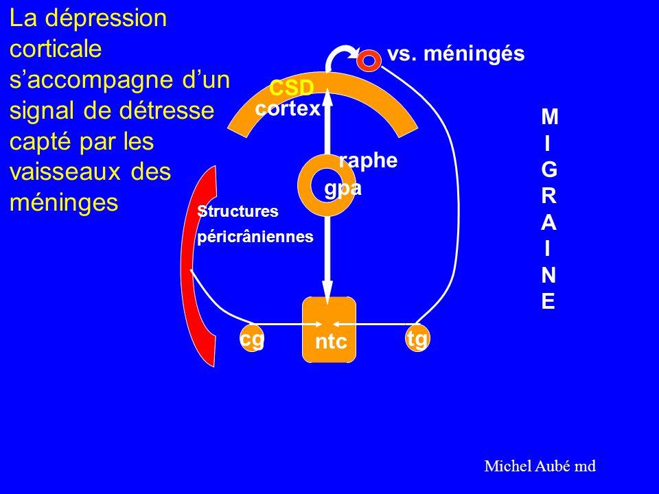 cgtg cortex vs. méningés raphe gpa Structures péricrâniennes ntc MIGRAINEMIGRAINE Michel Aubé md CSD La dépression corticale s'accompagne d'un signal