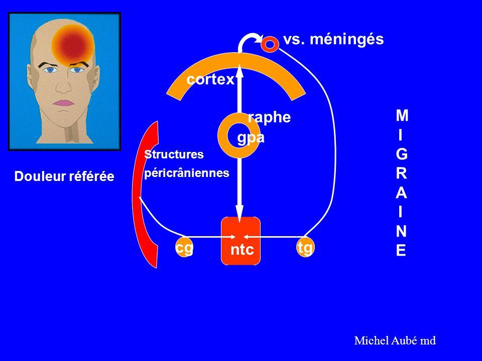 cgtg cortex vs. méningés raphe gpa Structures péricrâniennes ntc MIGRAINEMIGRAINE Michel Aubé md Douleur référée