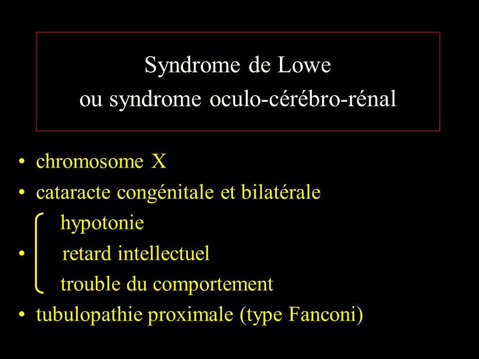 Syndrome de Lowe ou syndrome oculo-cérébro-rénal chromosome X cataracte congénitale et bilatérale hypotonie retard intellectuel trouble du comportement tubulopathie proximale (type Fanconi)