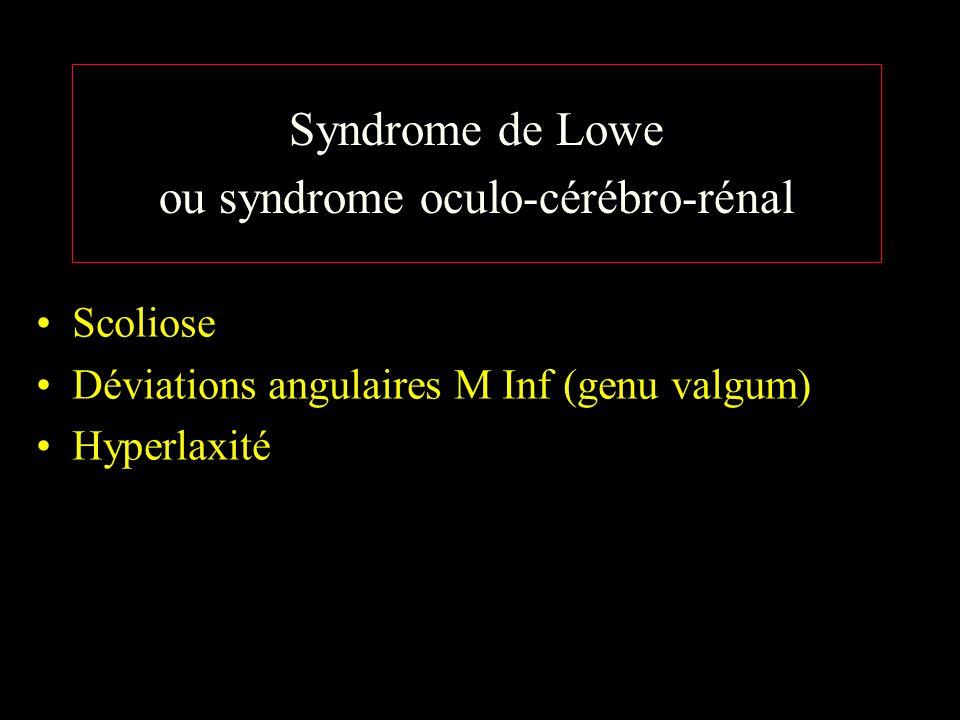 Syndrome de Lowe ou syndrome oculo-cérébro-rénal Scoliose Déviations angulaires M Inf (genu valgum) Hyperlaxité