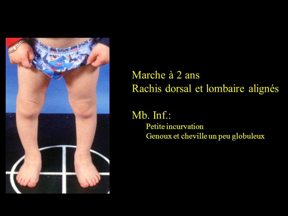 Marche à 2 ans Rachis dorsal et lombaire alignés Mb. Inf.: Petite incurvation Genoux et cheville un peu globuleux