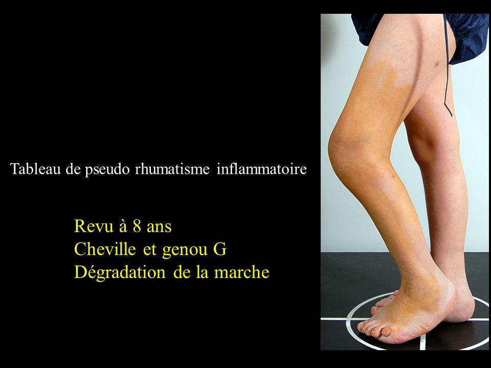 Tableau de pseudo rhumatisme inflammatoire Revu à 8 ans Cheville et genou G Dégradation de la marche