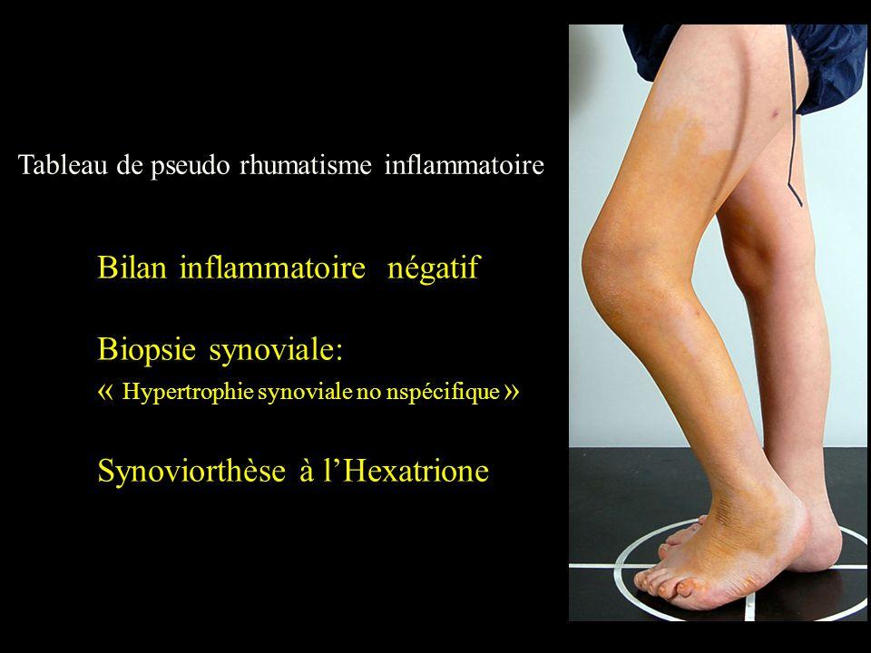 Tableau de pseudo rhumatisme inflammatoire Bilan inflammatoire négatif Biopsie synoviale: « Hypertrophie synoviale no nspécifique » Synoviorthèse à l'