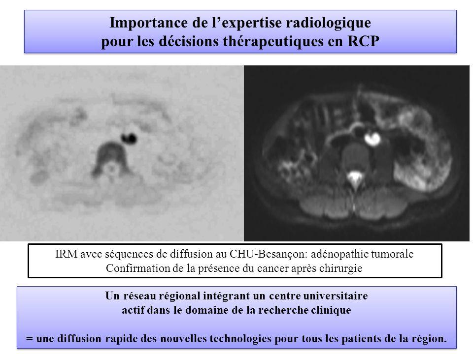 Importance de l'expertise radiologique pour les décisions thérapeutiques en RCP Importance de l'expertise radiologique pour les décisions thérapeutiques en RCP