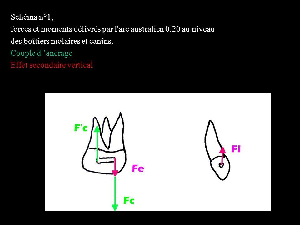 4 éléments Schéma n°5,a et 5,b figurer la force résultante et le moment résultant au niveau des centres de résistance de la molaire et de la canine.