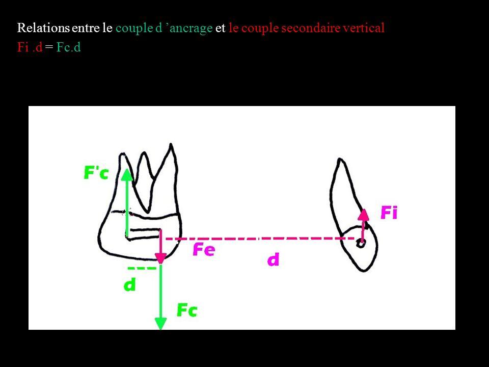 Schéma n°2 forces et moments délivrés par l arc australien 0.20 au niveau des centres de résistance de la molaire et de la canine.