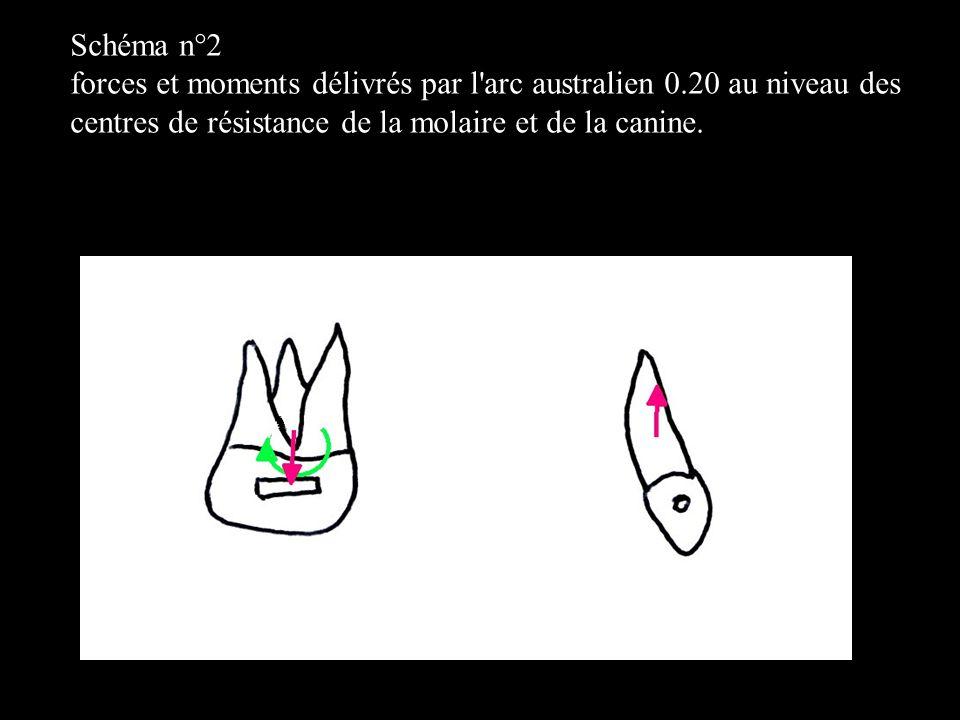 4 éléments Dans le plan frontal Sur un schéma n°1,b forces et moments délivrés par l arc australien 0.20 avec tip back sans toe in au mésial puis au distal des boîtiers molaires.