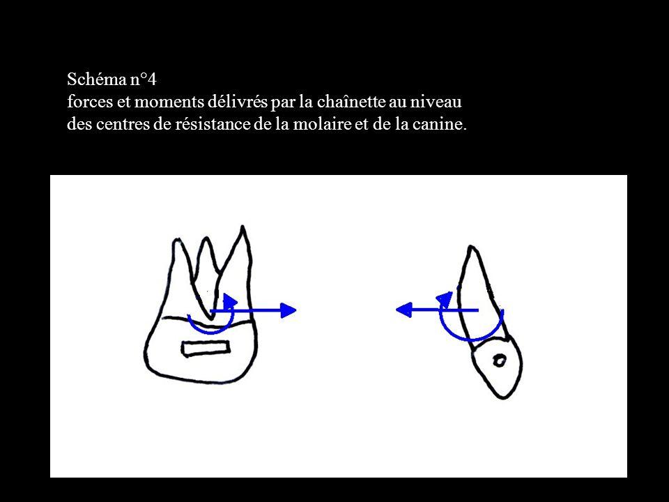 4 éléments Dans le plan frontal Sur un schéma n°1,b forces et moments délivrés par l arc australien 0.20 avec pli disto apical (tip back) et pli disto lingual (toe in) au mésial puis au distal des boîtiers molaires.