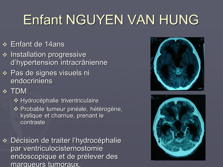 Enfant NGUYEN VAN HUNG v Enfant de 14ans v Installation progressive d'hypertension intracrânienne v Pas de signes visuels ni endocriniens v TDM vHydrocéphalie triventriculaire vProbable tumeur pinéale, hétérogène, kystique et charnue, prenant le contraste v Décision de traiter l'hydrocéphalie par ventriculocisternostomie endoscopique et de prélever des marqueurs tumoraux.