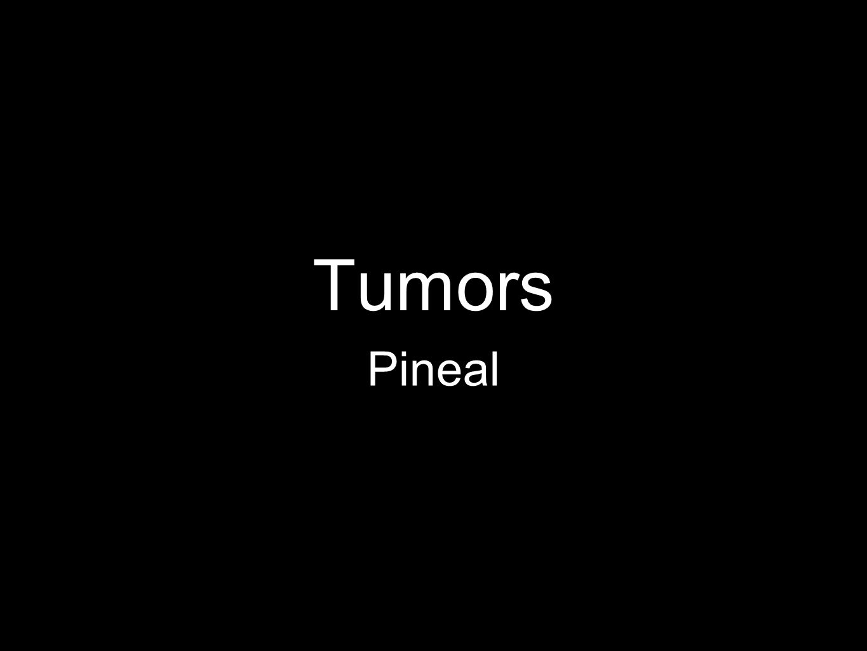 Tumors Pineal