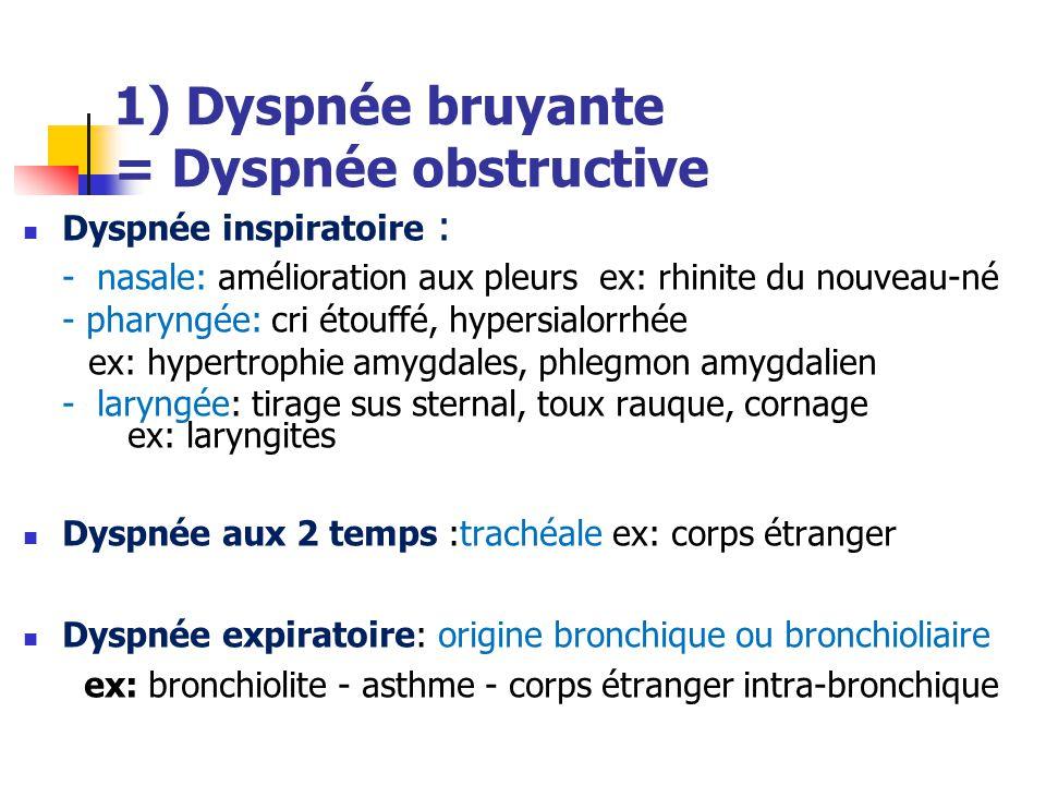 1) Dyspnée bruyante = Dyspnée obstructive Dyspnée inspiratoire : - nasale: amélioration aux pleurs ex: rhinite du nouveau-né - pharyngée: cri étouffé,
