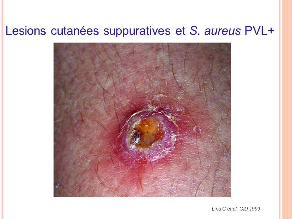 Lesions cutanées suppuratives et S. aureus PVL+ Lina G et al. CID 1999