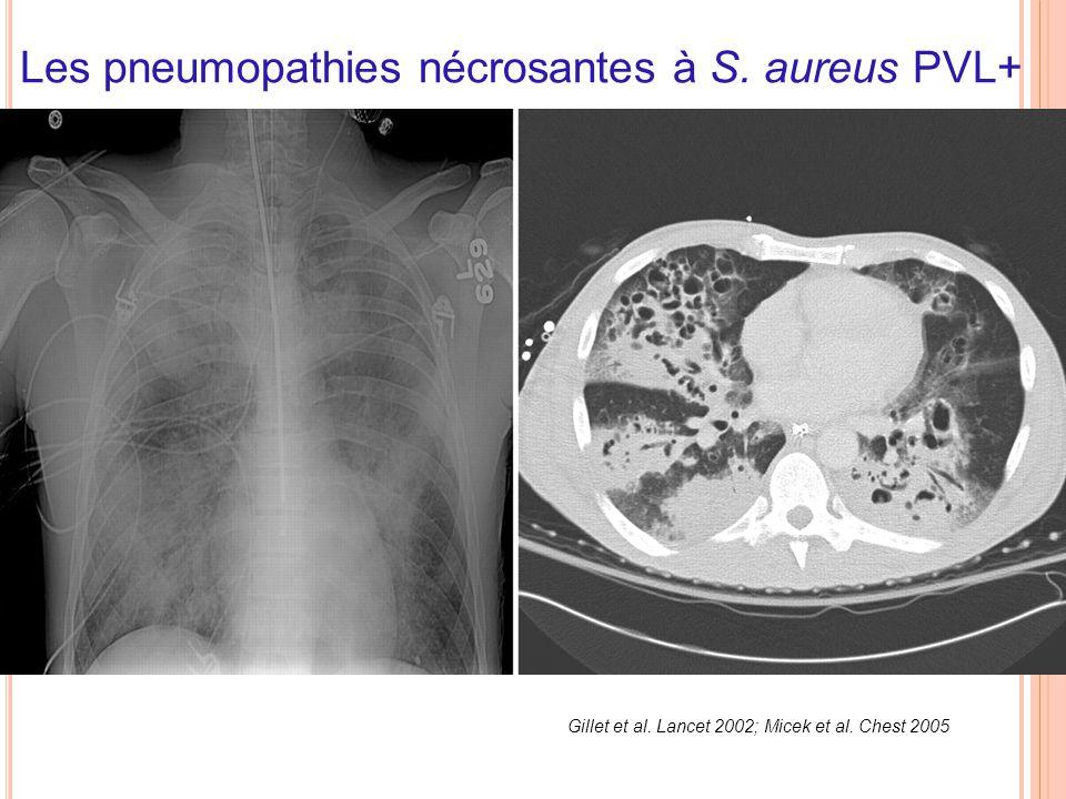 Gillet et al. Lancet 2002; Micek et al. Chest 2005 Les pneumopathies nécrosantes à S. aureus PVL+