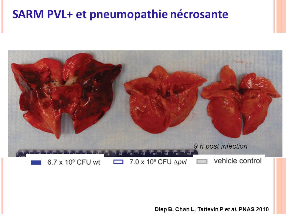 9 h post infection SARM PVL+ et pneumopathie nécrosante Diep B, Chan L, Tattevin P et al. PNAS 2010