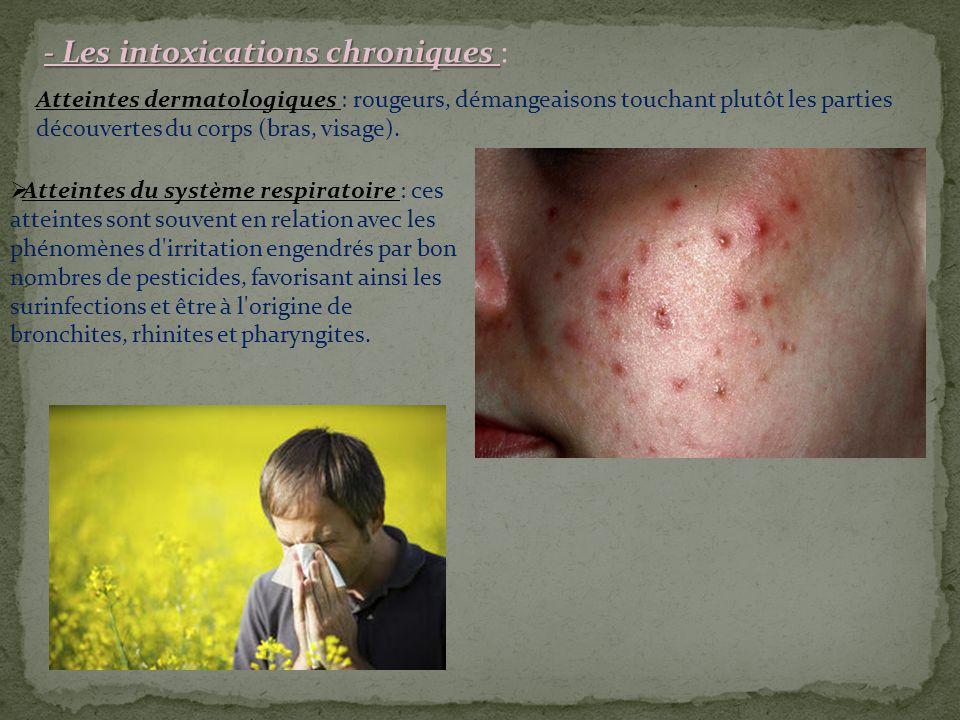 - Les intoxications chroniques - Les intoxications chroniques : Atteintes dermatologiques : rougeurs, démangeaisons touchant plutôt les parties découvertes du corps (bras, visage).
