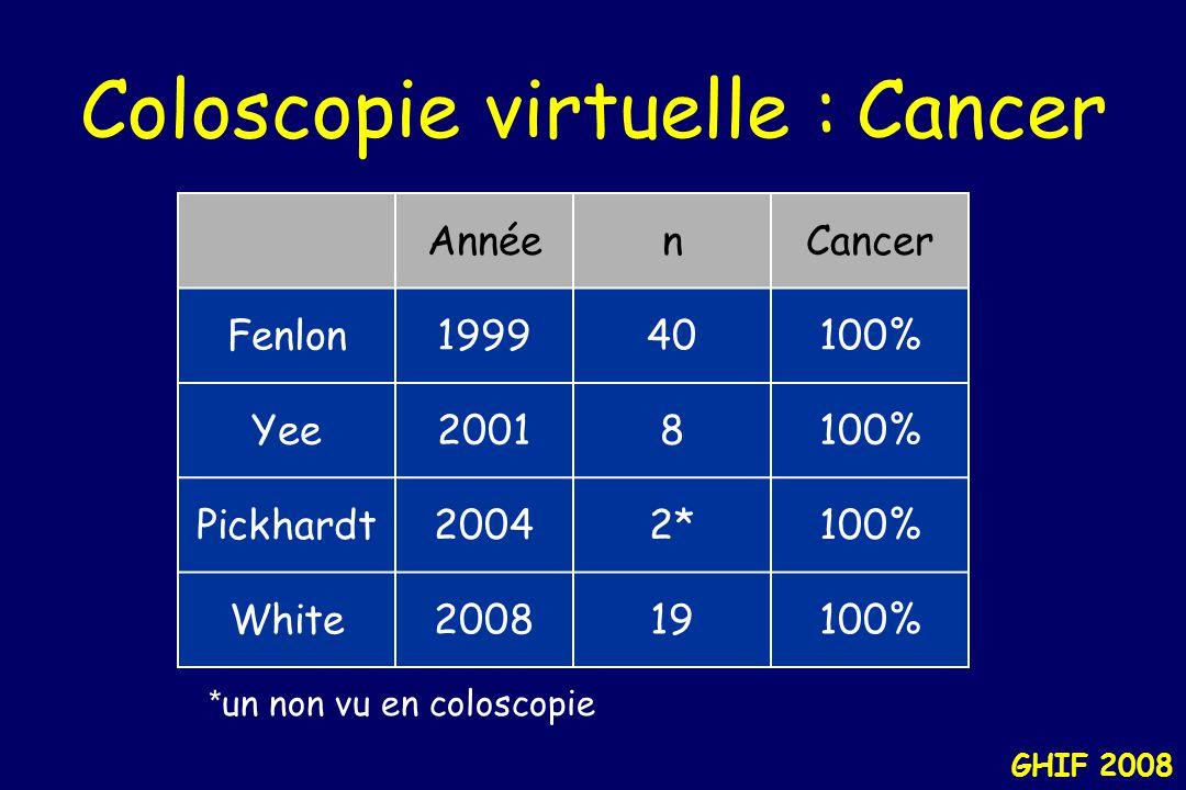 """GHIF 2008 Coloscopie virtuelle : Analyse """"per patient"""" Sensibilité Sensibilité Spécificité % Per pt. % Per pt. % Polypes >1cm 45–9238–100 74–100 Polyp"""