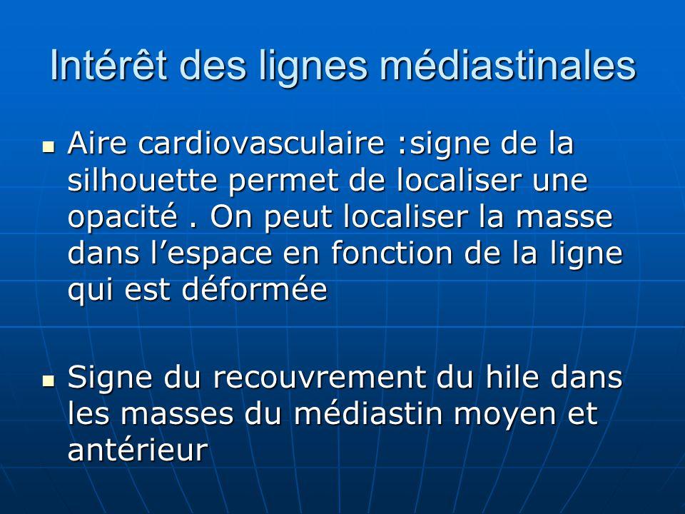 Intérêt des lignes médiastinales Aire cardiovasculaire :signe de la silhouette permet de localiser une opacité.