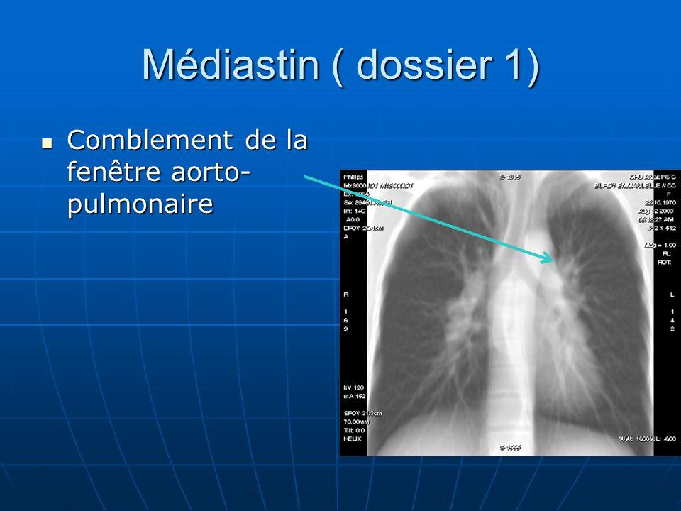 Médiastin ( dossier 1) Comblement de la fenêtre aorto- pulmonaire Comblement de la fenêtre aorto- pulmonaire