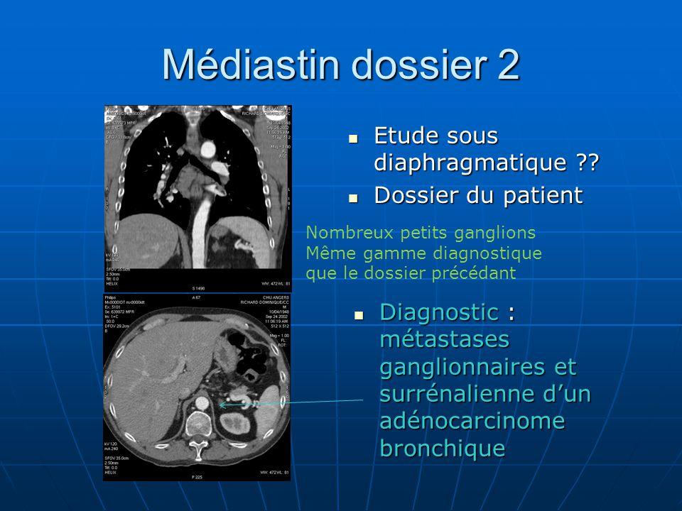 Médiastin dossier 2 Etude sous diaphragmatique ?.Etude sous diaphragmatique ?.