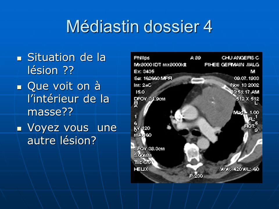 Médiastin dossier 4 Situation de la lésion ?.Situation de la lésion ?.
