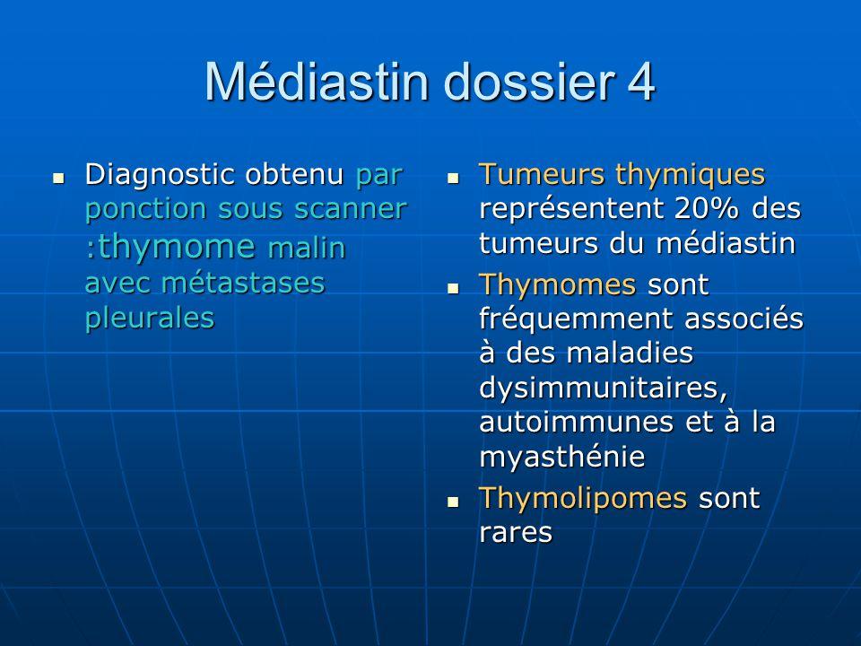 Médiastin dossier 4 Diagnostic obtenu par ponction sous scanner : thymome malin avec métastases pleurales Diagnostic obtenu par ponction sous scanner : thymome malin avec métastases pleurales Tumeurs thymiques représentent 20% des tumeurs du médiastin Tumeurs thymiques représentent 20% des tumeurs du médiastin Thymomes sont fréquemment associés à des maladies dysimmunitaires, autoimmunes et à la myasthénie Thymomes sont fréquemment associés à des maladies dysimmunitaires, autoimmunes et à la myasthénie Thymolipomes sont rares Thymolipomes sont rares