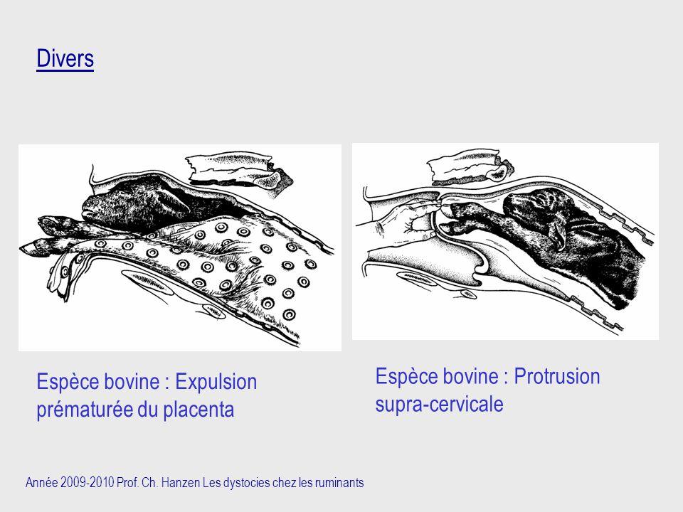 Année 2009-2010 Prof. Ch. Hanzen Les dystocies chez les ruminants Espèce bovine : Expulsion prématurée du placenta Divers Espèce bovine : Protrusion s