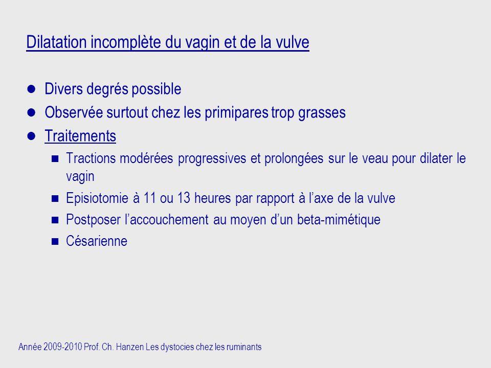 Année 2009-2010 Prof. Ch. Hanzen Les dystocies chez les ruminants Dilatation incomplète du vagin et de la vulve Divers degrés possible Observée surtou