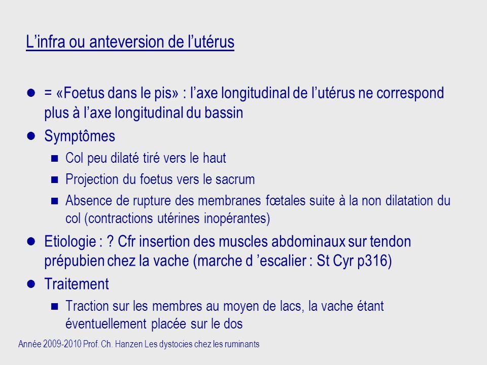 Année 2009-2010 Prof. Ch. Hanzen Les dystocies chez les ruminants L'infra ou anteversion de l'utérus = «Foetus dans le pis» : l'axe longitudinal de l'