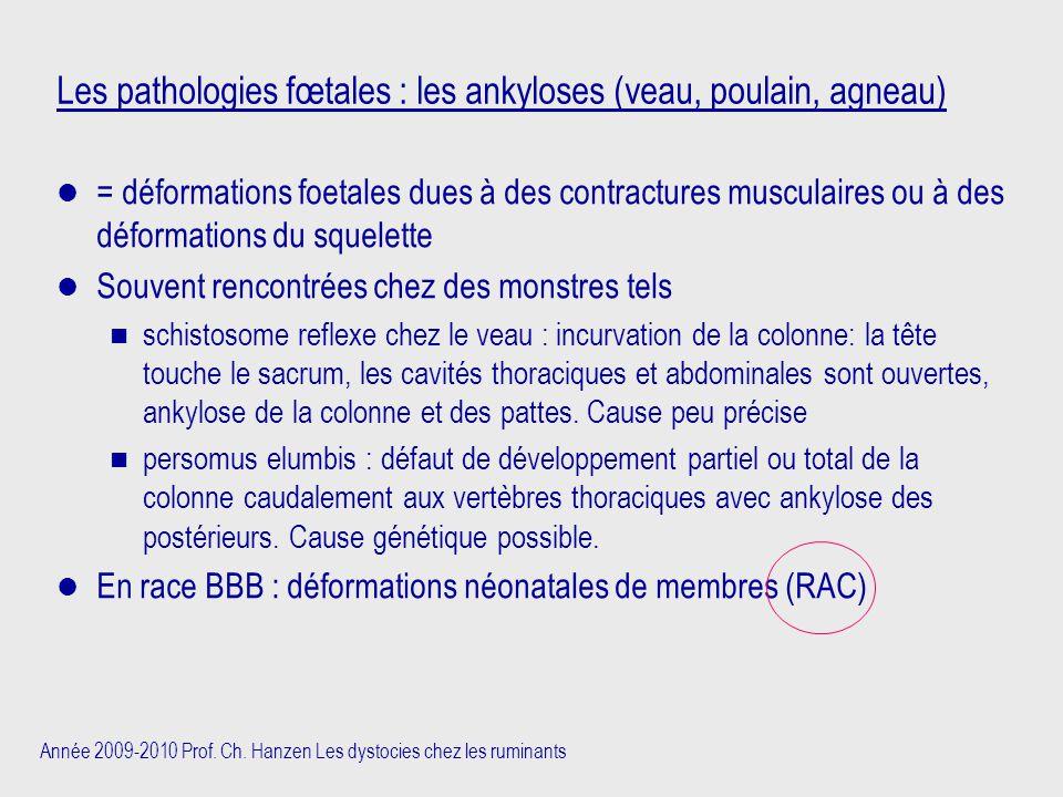 Année 2009-2010 Prof. Ch. Hanzen Les dystocies chez les ruminants Les pathologies fœtales : les ankyloses (veau, poulain, agneau) = déformations foeta