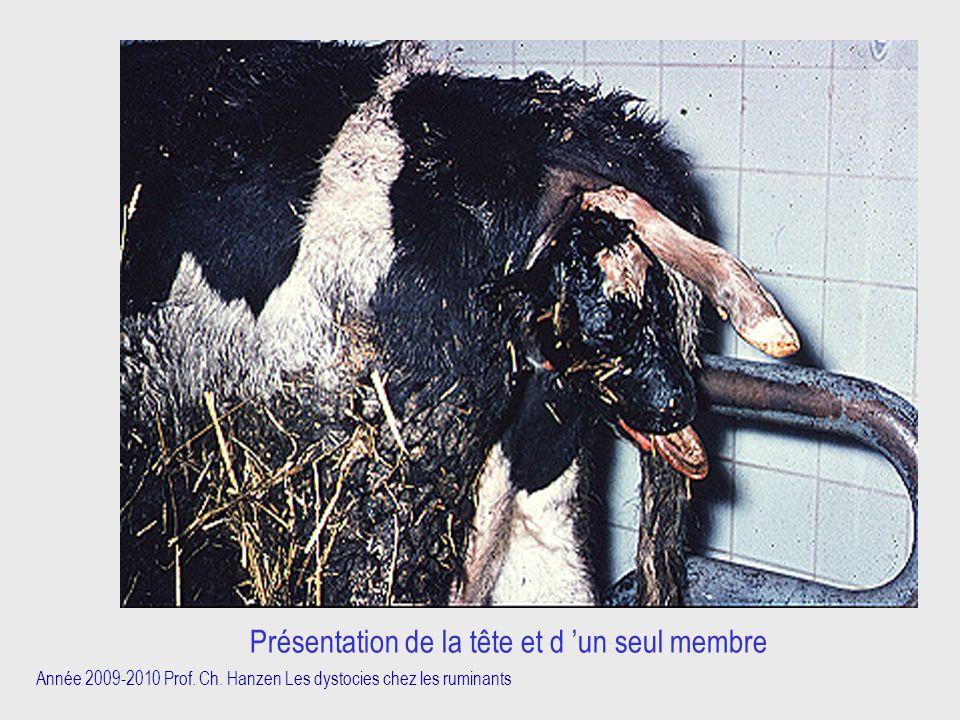 Année 2009-2010 Prof. Ch. Hanzen Les dystocies chez les ruminants Présentation de la tête et d 'un seul membre