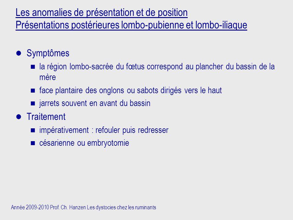 Année 2009-2010 Prof. Ch. Hanzen Les dystocies chez les ruminants Les anomalies de présentation et de position Présentations postérieures lombo-pubien