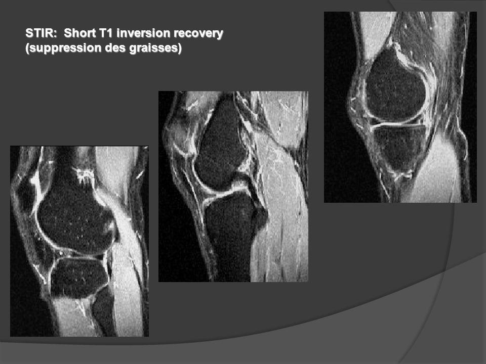 STIR: Short T1 inversion recovery (suppression des graisses)